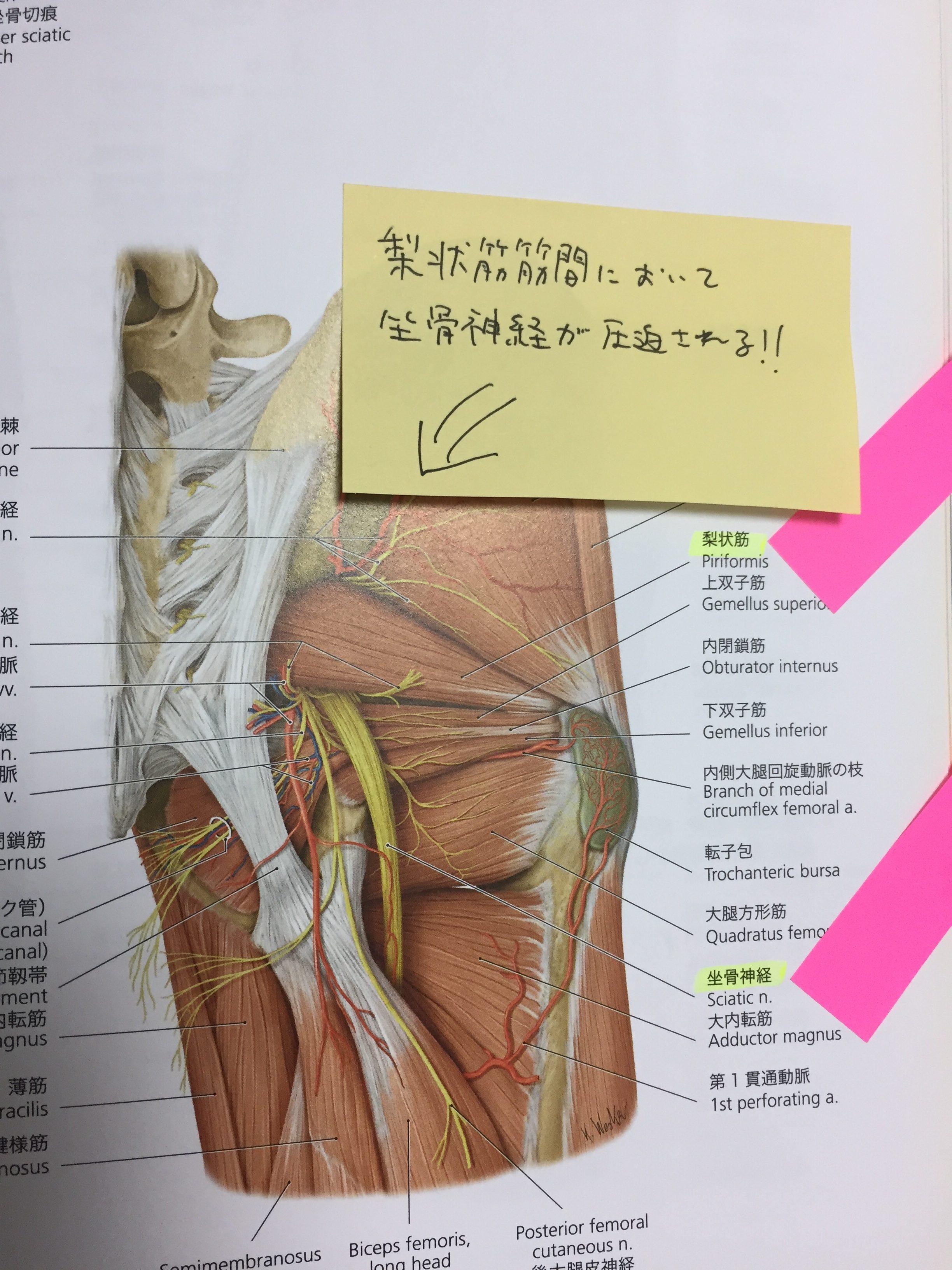 神経痛 症状 坐骨